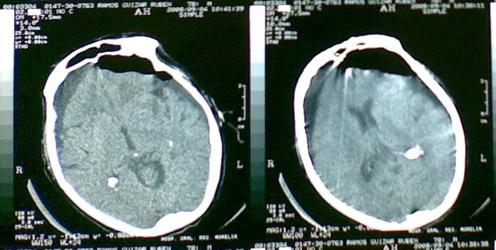 Paciente diagnósticado previamente con higroma subdural, el cual consiste en una acumulación de LCR en el espacio subdural tras un desgarro o lesión de las leptomeninges, se dreno quirúrgicamente. Si bien, la imagen hipodensa puede confundirse facimente con un hematoma subdural, subcrónico o crónico, pero el paciente ya tenia diagnóstico previo. Ahora se observa una imagen de densidad aire que corresponde a una complicación posquirúrgica del drenaje del hidroma. La acumulación de aire intracraneal, conocida como pneumoencéfalo.