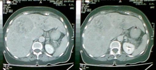 Observamos esta imagen con una masa hipodensa hepática, además un higado con densidad heterogénea. Recordemos que la paciente está icterica y además tiene pérdida de peso de 1 Kg en los últimos 3 meses.