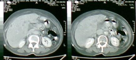 Este corte de la CT solo lo agregué para mostrar lo que clinicamente es muy evidente, la hepatomegalia, es decir es cortes tan bajos no deberia observarse el higado y menos de ese tamaño.