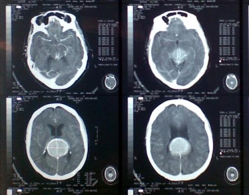 Esta CT es de un particular, solo la pongo para compararla con la CT del IMSS HGR No1 (que son las previas). Y además también para ver nuevamente el tallo dural.