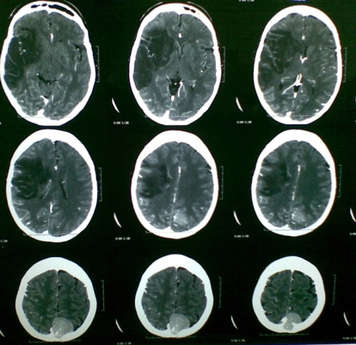 evc-isquemico-meningioma-incidental