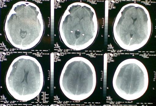 En esta imagen observamos un hematoma subdural crónico y bilateral, que requirió manejo quirúrgico, con buenos resultados