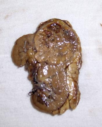 Pieza quirúrgica de nefrectomía. Se aprecia  la tumoración redondeada en el polo superior renal, mayor a 7 cm de diametro, pero que al parecer estaba confinada al riñón.