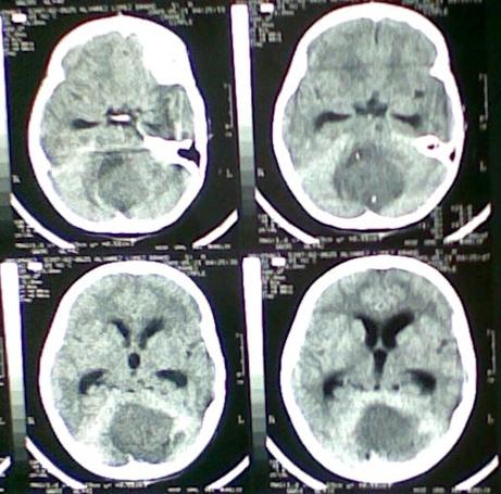Tomografía sin medio de constraste