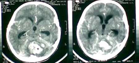 En esta tomografía observamos lo que pasa con el medio de constraste, una tumoración altamente vascularizada