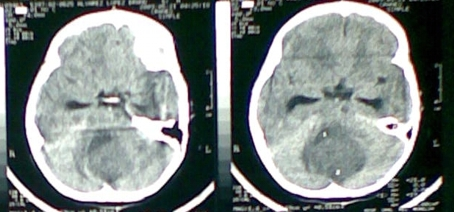 TAC meduloblastoma niño 6 años5