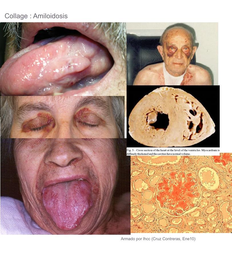 Traumatolog 237 A Y Ortopedia T 243 Mate Tu Medicina